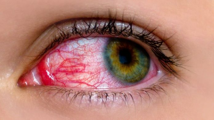 Natural cures for pink eye