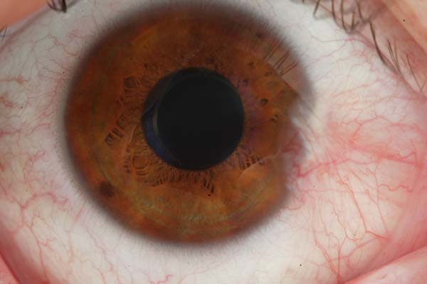 Natural cures for pterygium
