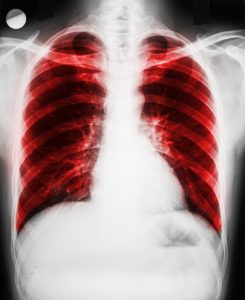 Natural cures for pulmonary fibrosis