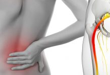 Natural cures for sciatica
