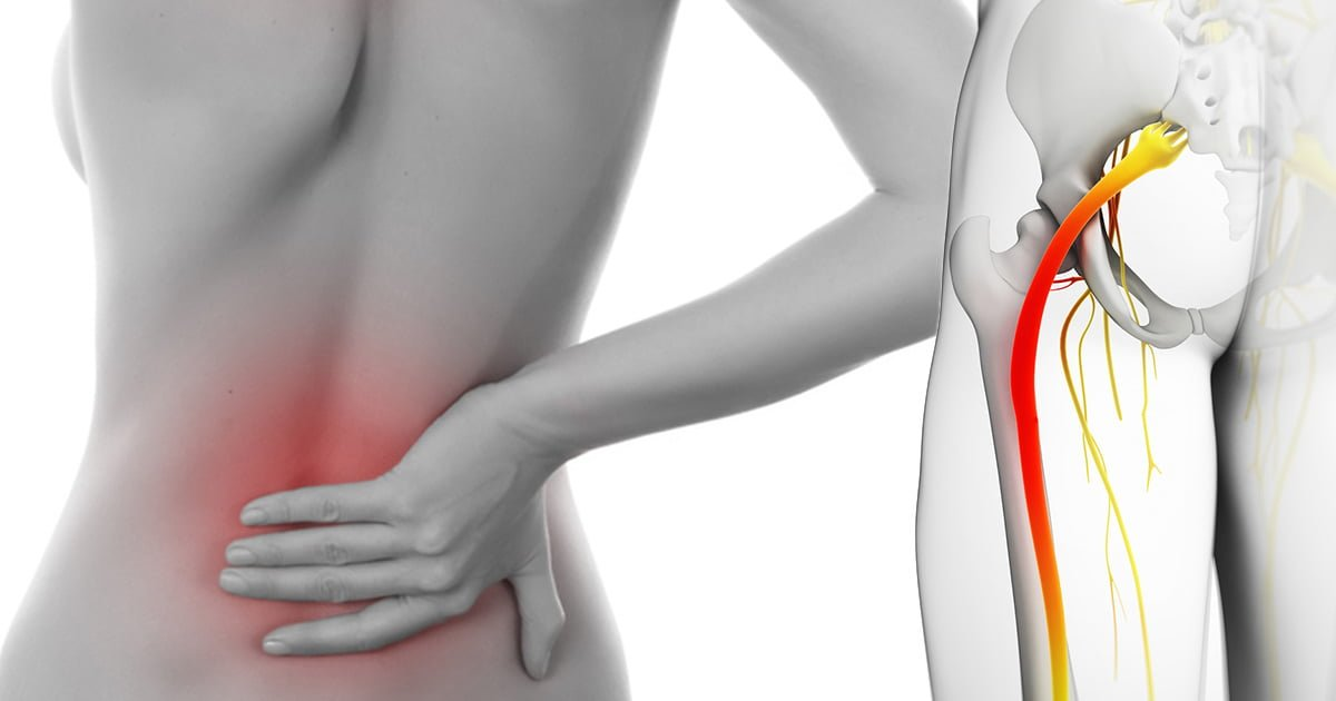 Sciatica Pain Natural Treatment