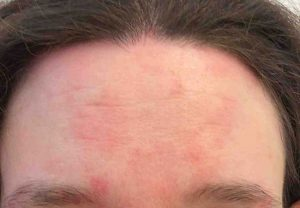 Natural cures for seborrheic dermatitis