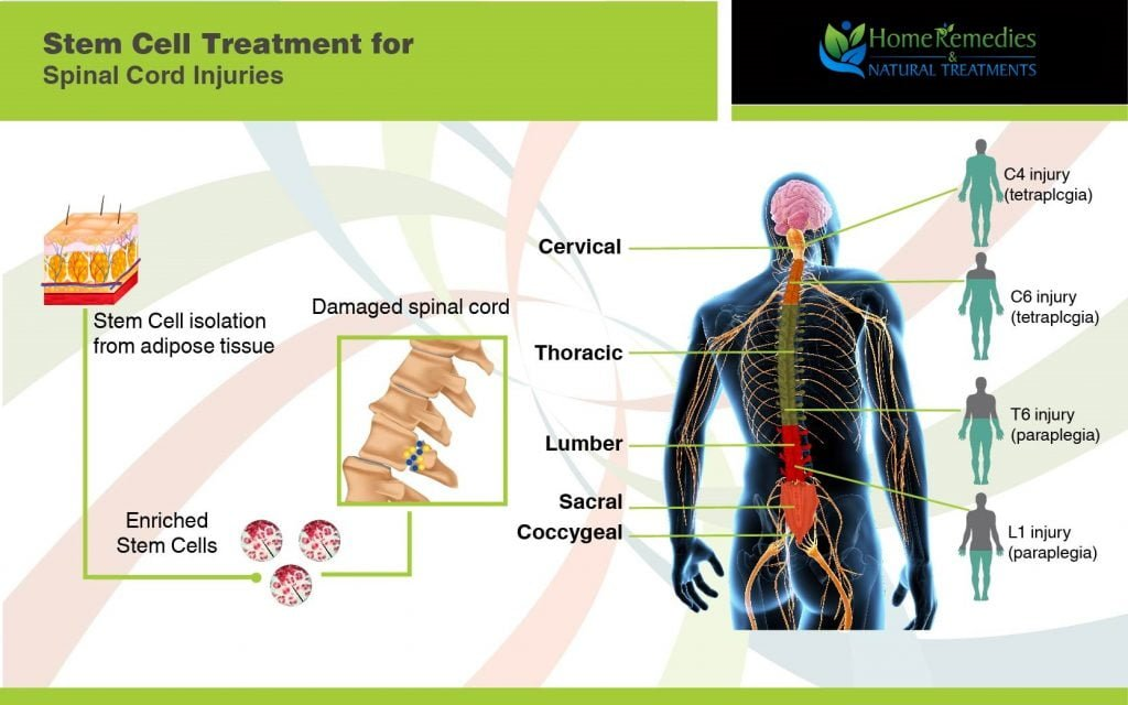Natural cures for spinal cord injury