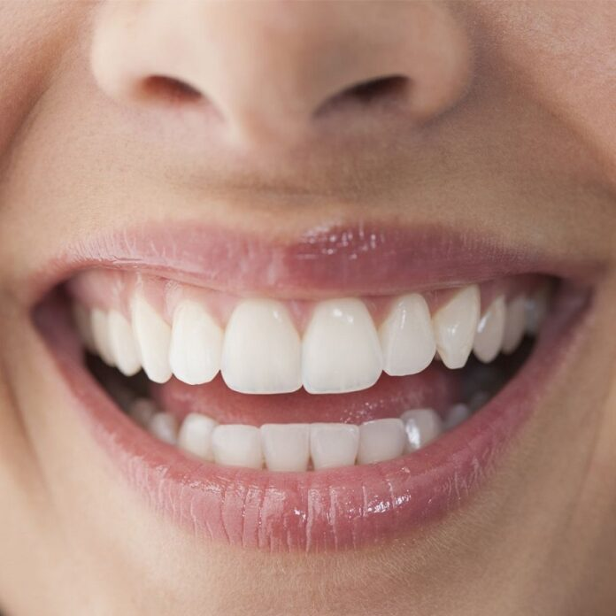Natural cures for teeth stains