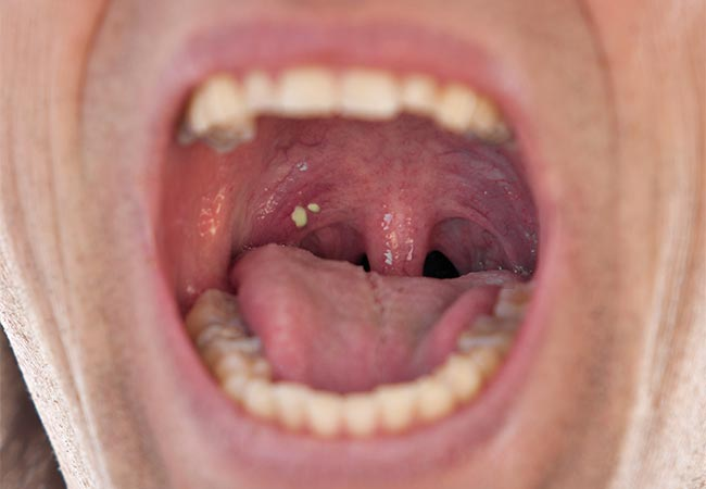 Natural cures for tonsil stones