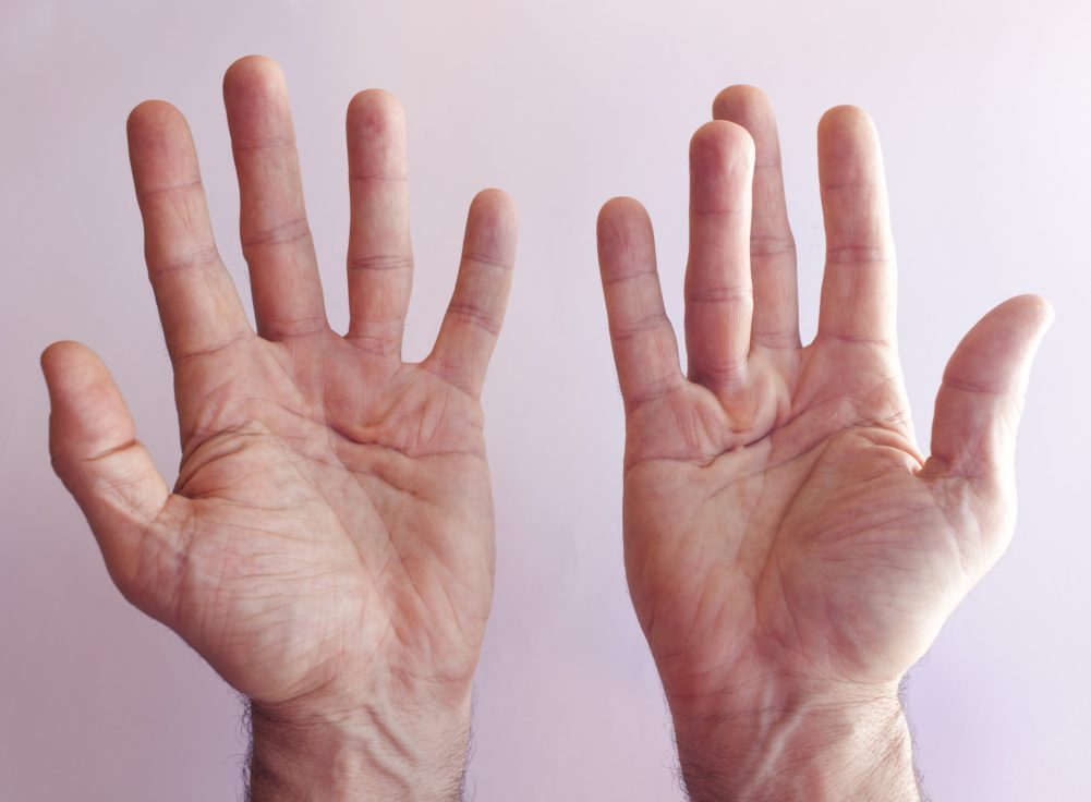 Natural cures for trigger finger