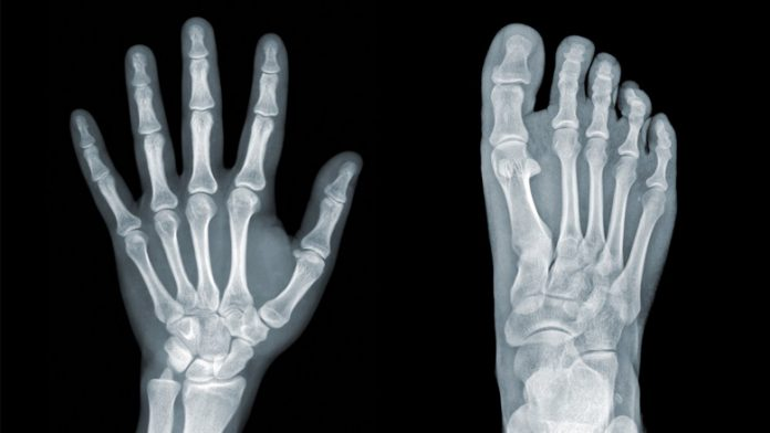 OsteopeniaSymptoms andCauses