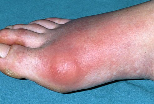 Gout - Symptoms, causes