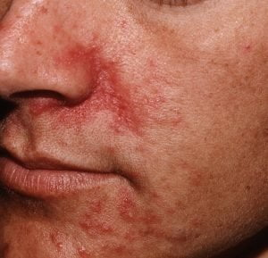 perioral dermatitis natural treatment