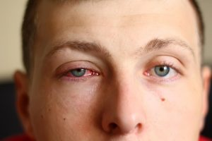 Pink eye Symptoms and Causes