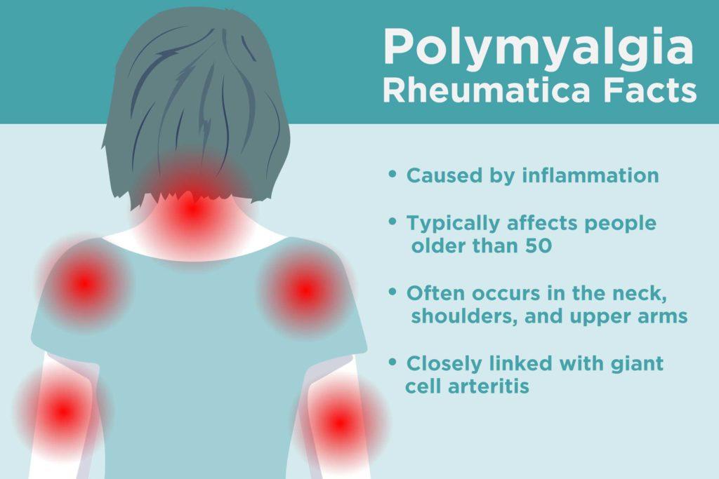 Polymyalgia rheumatica