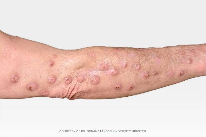 Prurigo Nodularis Causes