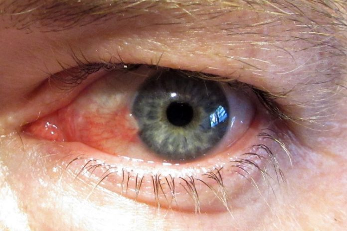 Pterygium Symptoms and Causes