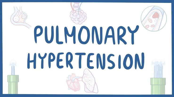 Pulmonary Hypertension Symptoms