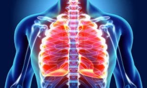 Pulmonary fibrosis Symptoms Causes