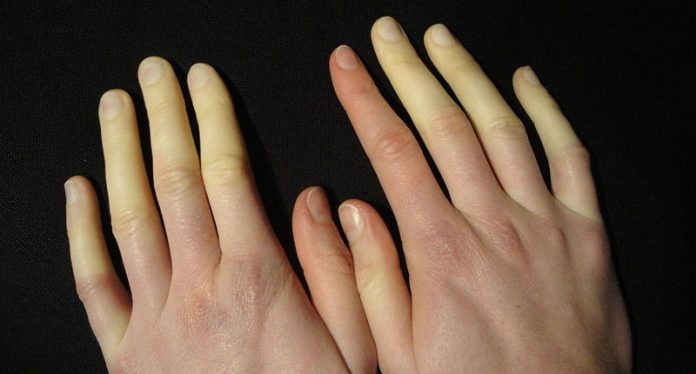Raynaud's disease Symptoms Causes
