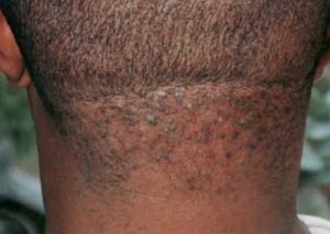Razor bumps Symptoms Causes