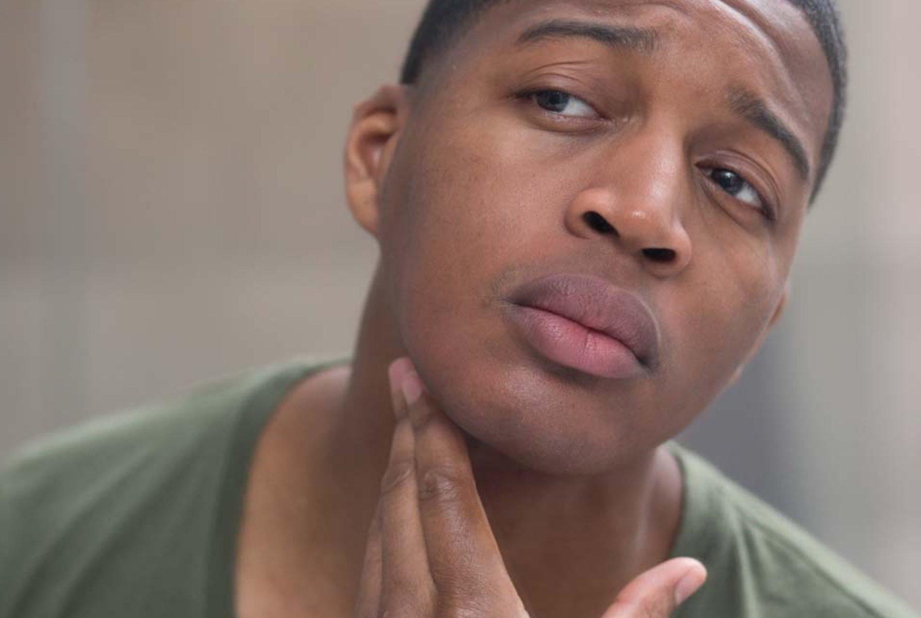 Razor Bumps Symptoms And Causes