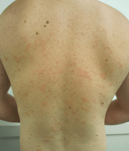 Seborrheic dermatitis Symptoms and Causes