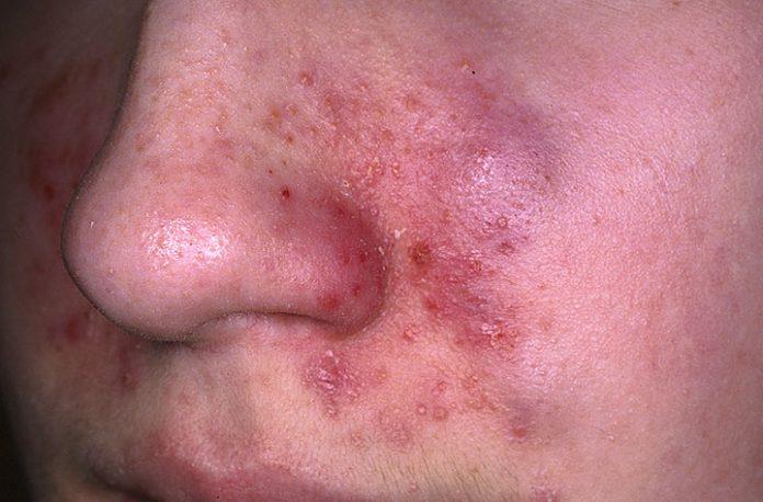 """Seborrhoische Dermatitis Symptome und Ursachen """"title ="""" Seborrhoische Dermatitis Symptome und Ursachen"""