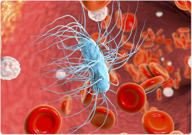 Sepsis symptoms, causes and risk factors