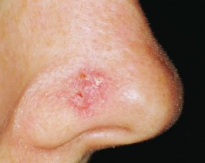 Skin cancer Symptoms and Causes