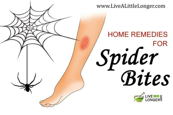 Spider bites home remedy treatment