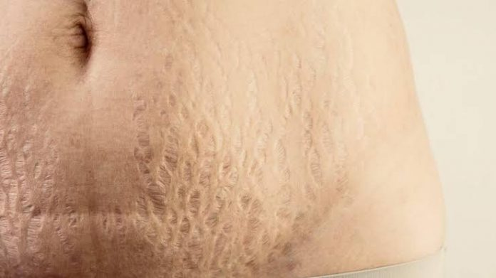 Strech Marks Causes