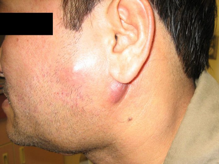swollen lymph nodes symptoms and causes