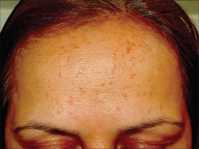 natural treatments for syringoma