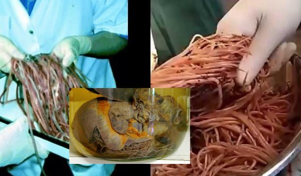 intestinal worms
