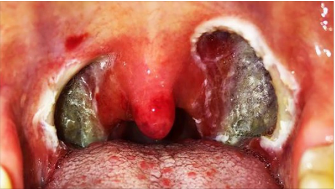 Tonsil stones Symptoms and Causes