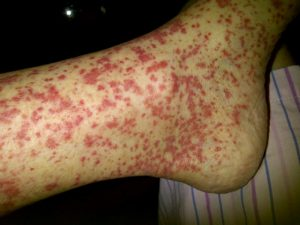 Vasculitis symptoms, causes and risk factors