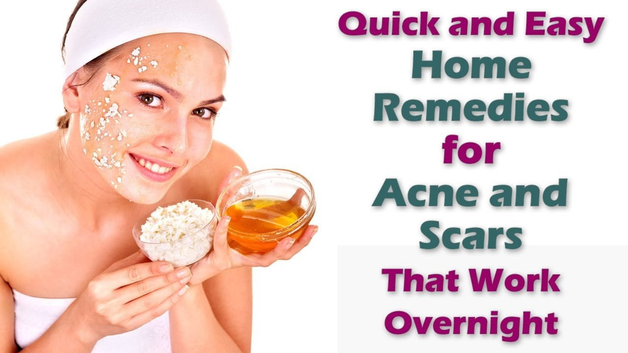 Home remedies for acne that actually work