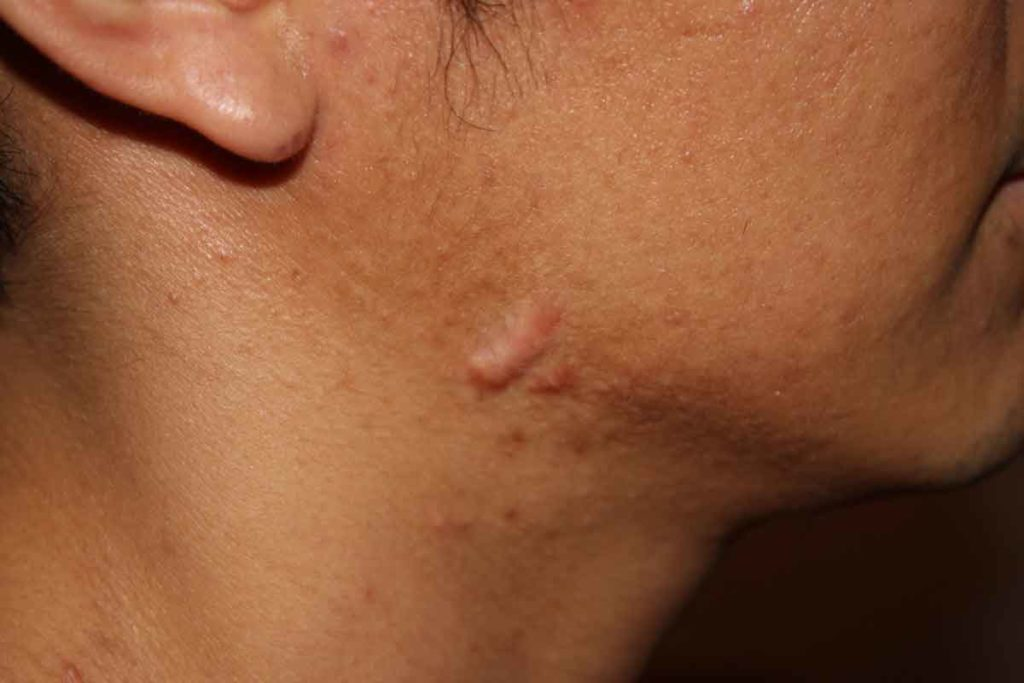 acne scars home remedy