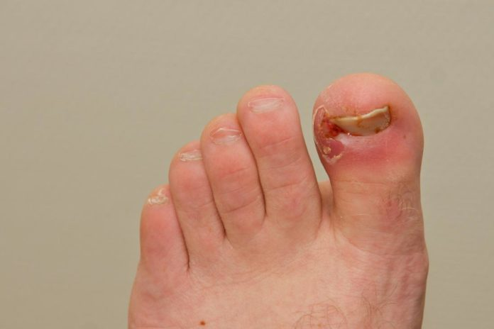 Natural cures for ingrown nails