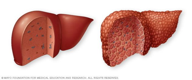 Natural cures and home remedies for cirrhosis