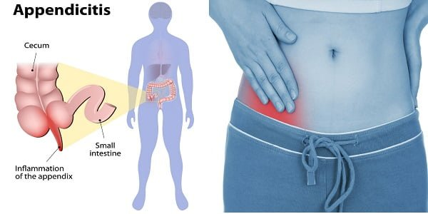 how to detect appendicitis at home