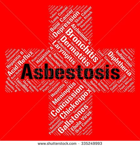 asbestosis home remedy