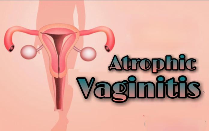 atrophic vaginitis nhs