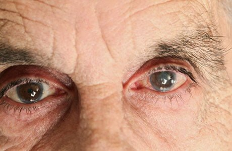 cataract home remedy, Natural cures for cataracts