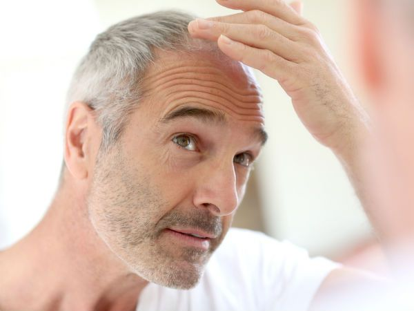 avoid baldness