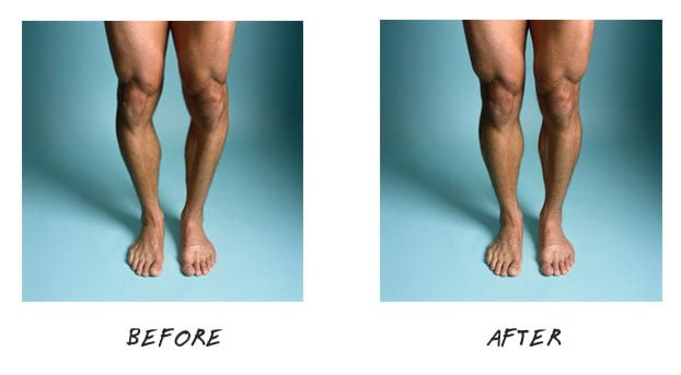 Natural cures for bow legs
