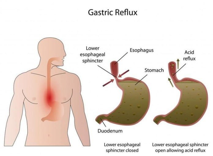 Natural Remedies For Bile Reflux