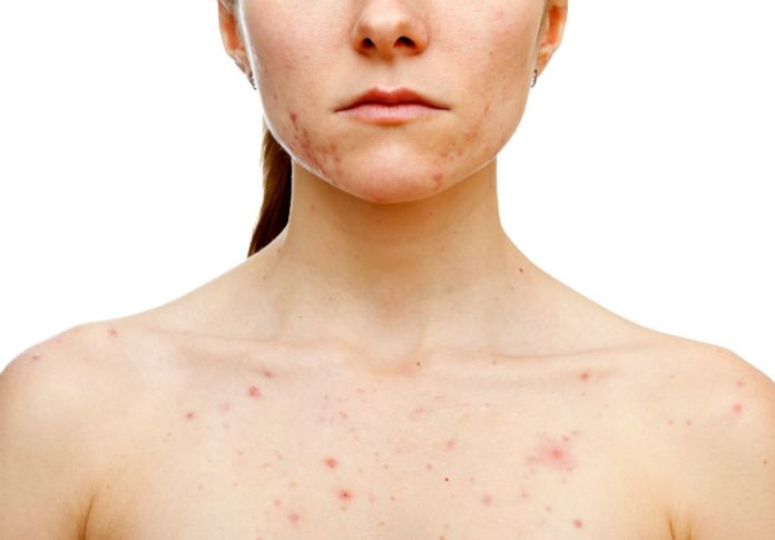 body acne types causes symptoms