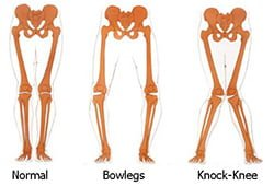 Bowlegs