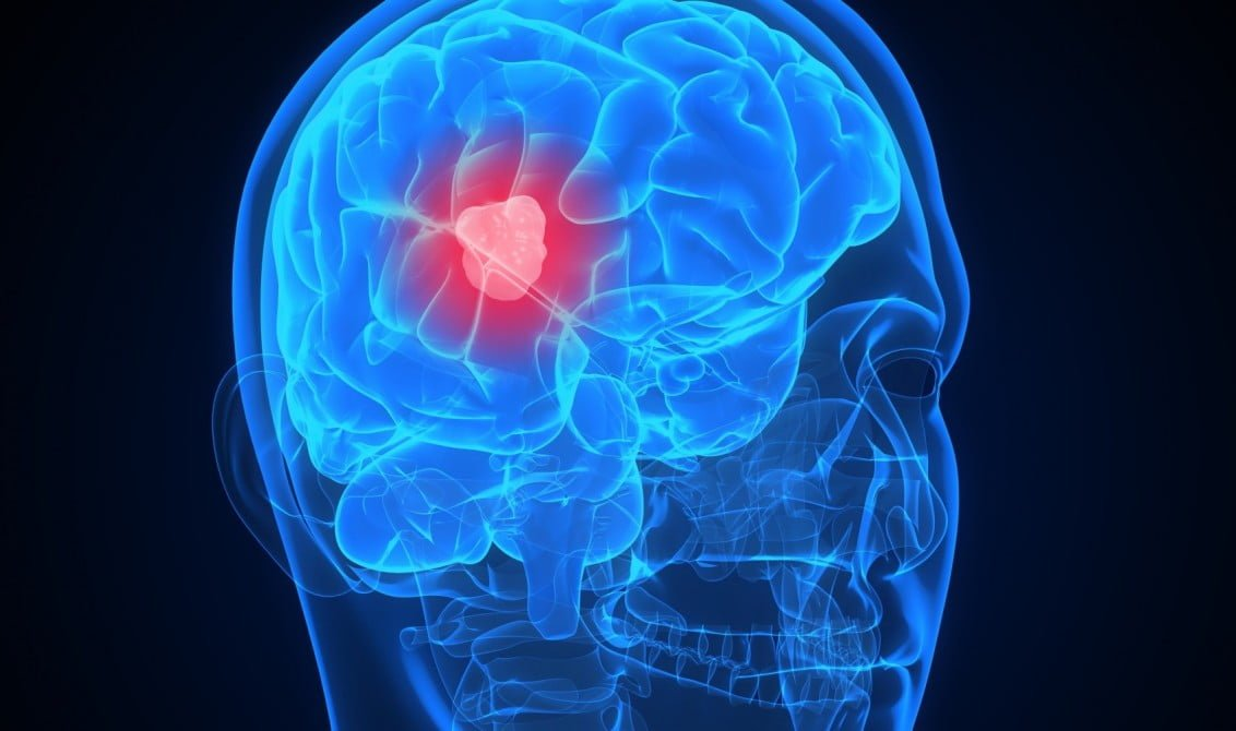 brain tumor home remedy