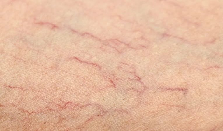 Broken Capillaries Symptoms And Causes