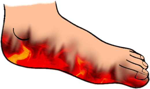 Natural cures for burning feet