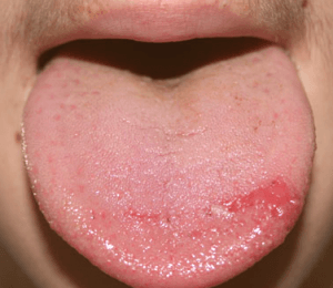 burning tongue syndrome